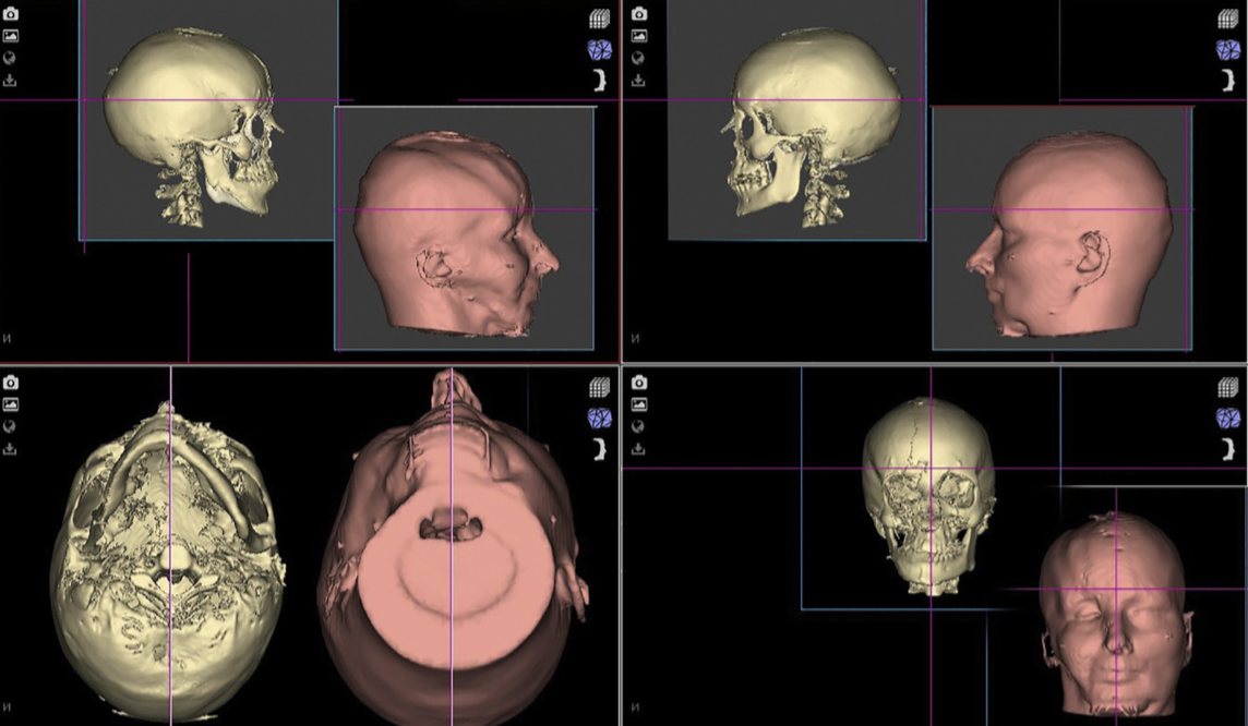 Screen dump 1. NHP Bone and Skin images.
