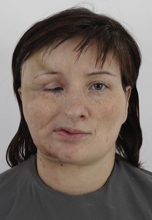 Figure 11. Third patient, postoperative frontal view.