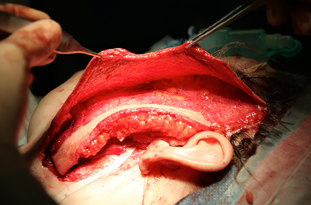 Figure5. Secondpatient, intraoperative left lateral view of the face. Extended preauricular incision with an individually modelled de-epithelised adipocutaneous ALT flap with skin paddle placed over the affected region.