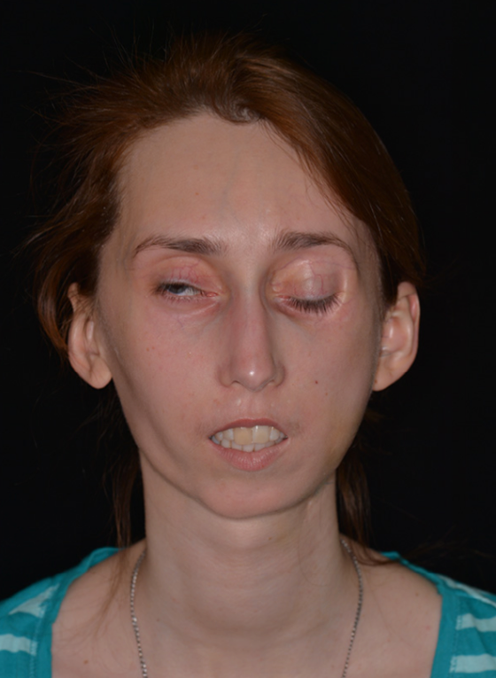 Figure 6. Second patient, postoperative frontal view.